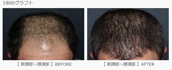 前頭部〜頭頂部に1800グラフト植毛