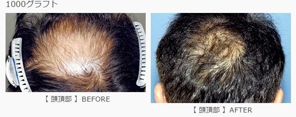 頭頂部に1000グラフト植毛