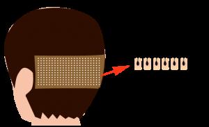 FUE法植毛