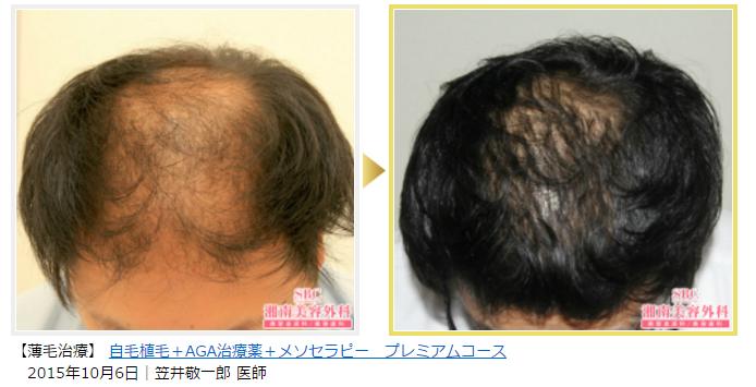 ルネッサンスクリニック 植毛症例数