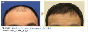 ルネッサンスクリニックのARTAS自毛植毛の症例写真数2