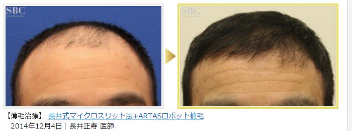 湘南美容クリニックのARTAS自毛植毛の症例写真数2