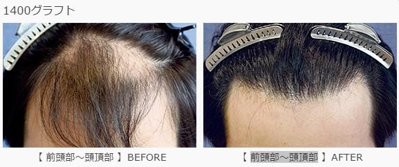 前頭部〜頭頂部に1400グラフト植毛