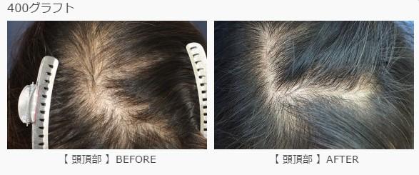 頭頂部に400グラフト植毛