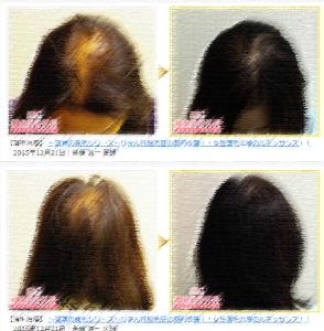 女性の薄毛治療 症例写真