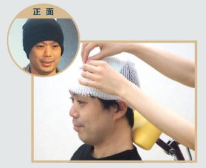 自毛植毛手術当日包帯