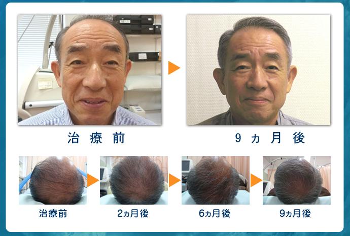 毛髪再生スマートメソセラピー9か月後