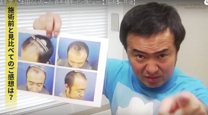 本田ライダー自毛植毛から5か月後