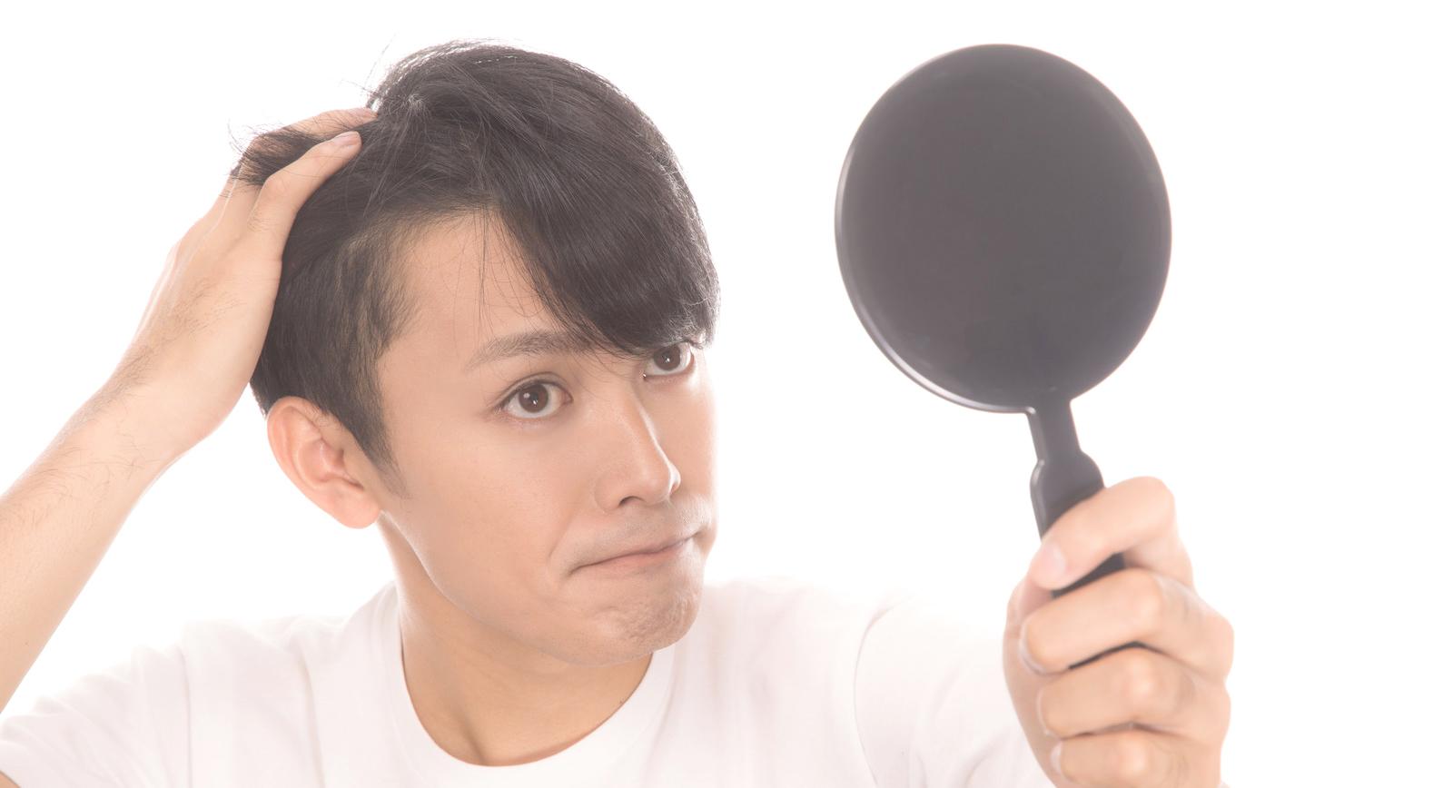 AGA治療薬それとも自毛植毛