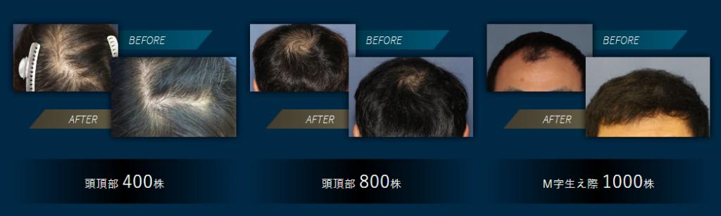 頭頂部の薄毛、いわゆるてっぺんハゲに必要な植毛グラフト数は