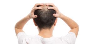 自毛植毛で後悔しないための5つの対策