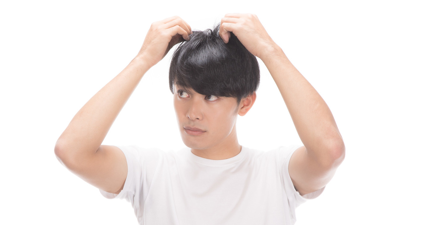 頭頂部自毛植毛