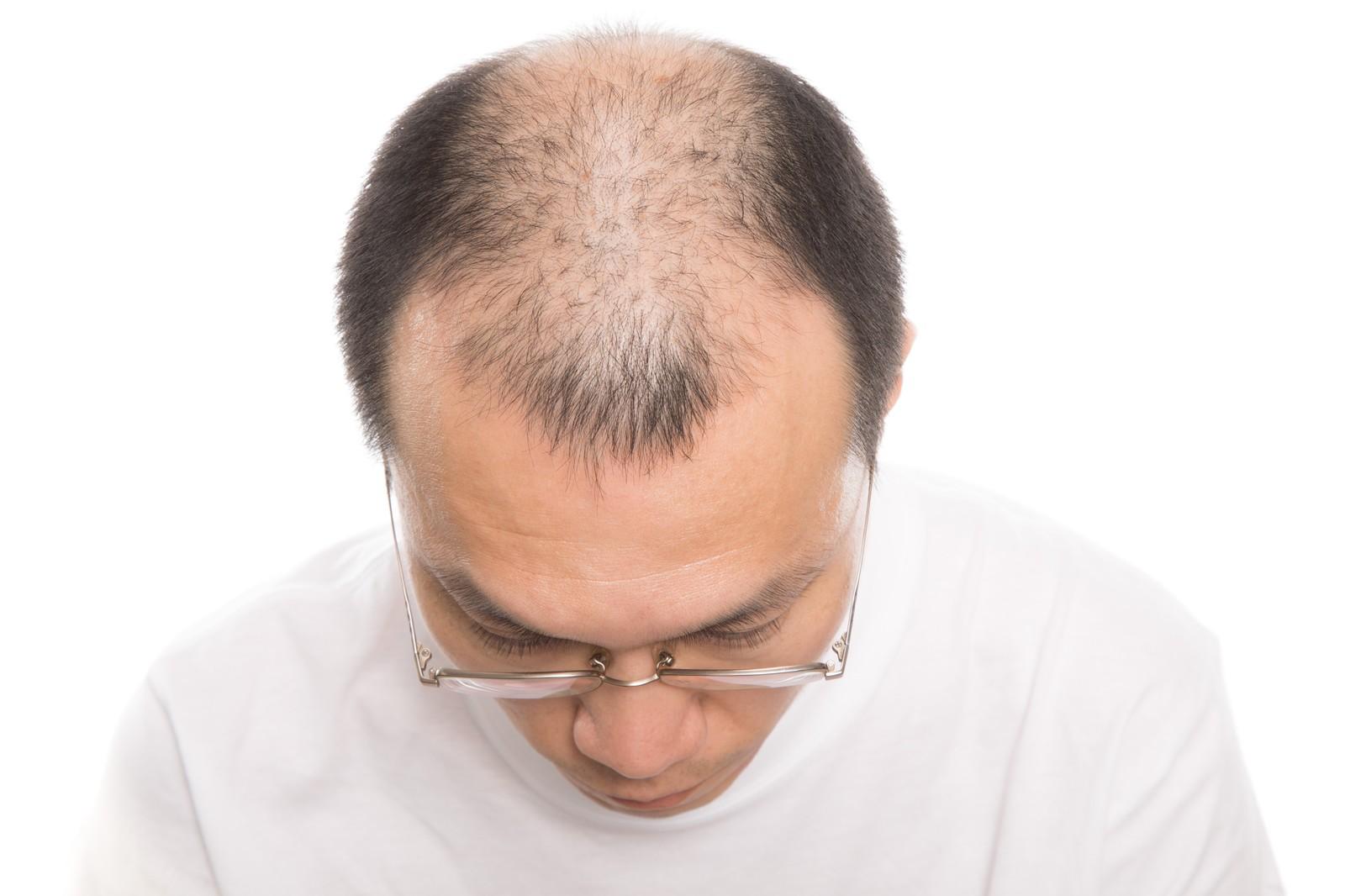 TOMクリニックPRP毛髪療法