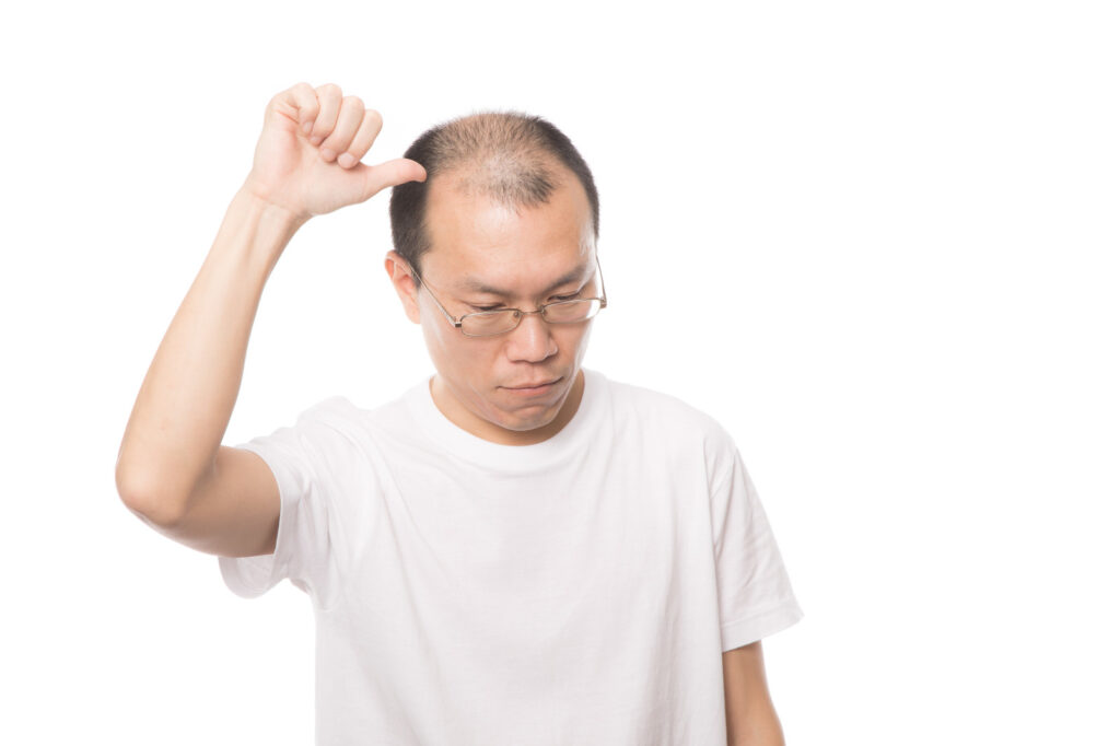 ミノタブの発毛率は3割