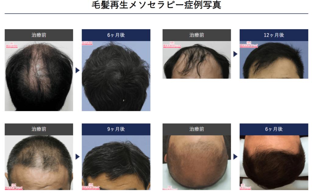 毛髪再生メソセラピー症例写真